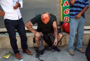 фото пострадавшего в результате авиаудара