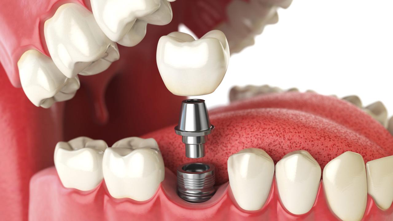 Brain Mark Dental Studio: отзыв о акции имплантации - это было больно